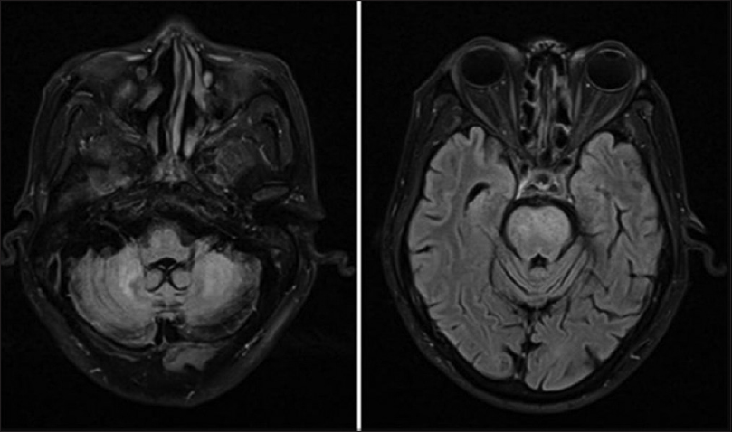 Figure 4: Magnetic resonance fluid attenuated inversion recovery images showing signal changes in cerebellum in the image on the right and the next shows signal changes in midbrain